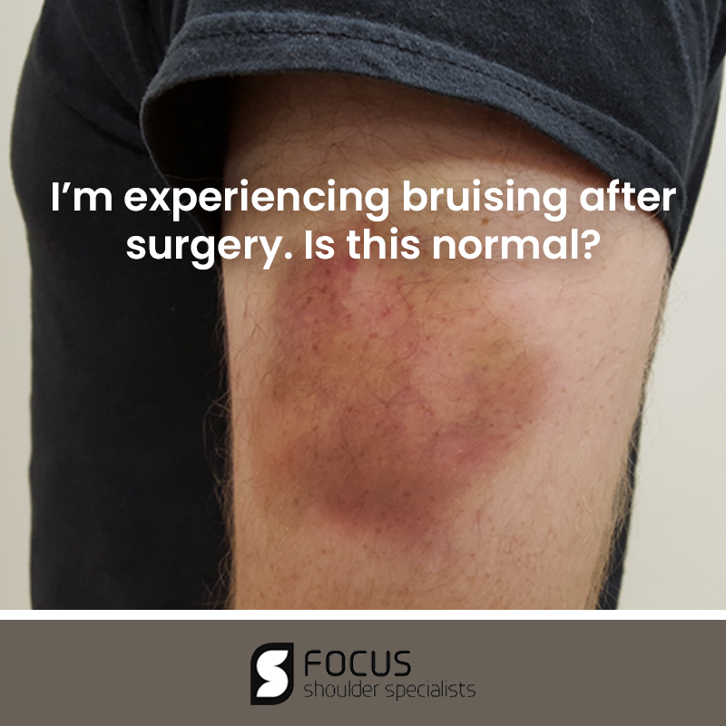 I'm Experiencing Bruising After Surgery. Is this Normal?